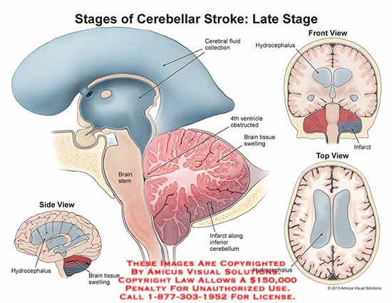 amicus,injury,stages,cerebellar,stroke,late,stage,cerebral,fluid,collection,hydrocephalus,4th,ventricle,brain,tissue,swelling,infarct,cerebellum,