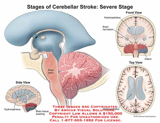 amicus,injury,stages,cerebellar,stroke,severe,stage,brain,stem,hydrocephalus,herniation,