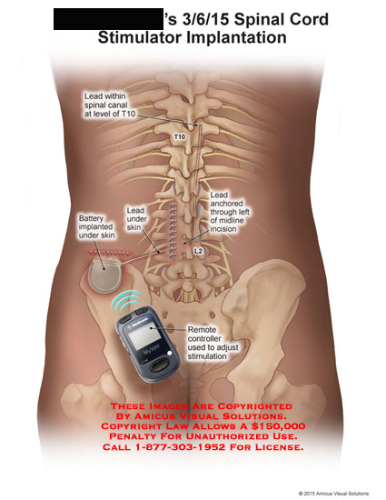 amicus,surgery,spinal,cord,stimulator,implantation,lead,canal,T10,battery,midline,incision,remote,controller,stimulation,