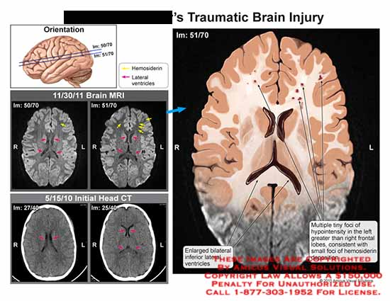 amicus,injury,brain,traumatic,MRI,CT,enlarged,lateral,ventricle,foci,hypointensity,greater,frontal,lobe,hemosiderin,deposition,