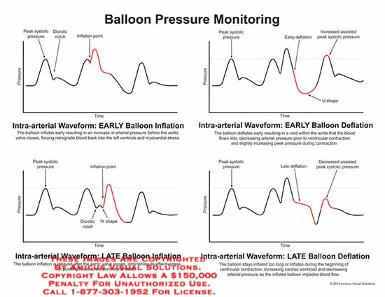 amicus,chart,baloon,pressure,monitoring,peak,systolic,pressure,dicrotic,notch,inflation,point,intra-atrial,early,pressure,aortic,valve,close,myocardial,stress,U,shape,early,W,coronary,late,