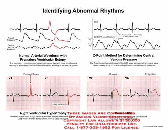 amicus,chart,identifying,abdormal,rhythms,normal,arterial,waveform,ECG,pressure,central,venous,premature,ventricular,ectopy,prematurely,blood,outflow,heart,X,point,QRS,wave,tricuspid,valve,diastolic,hypertrophy,muscle,V1,deflection,S,V5,V6,