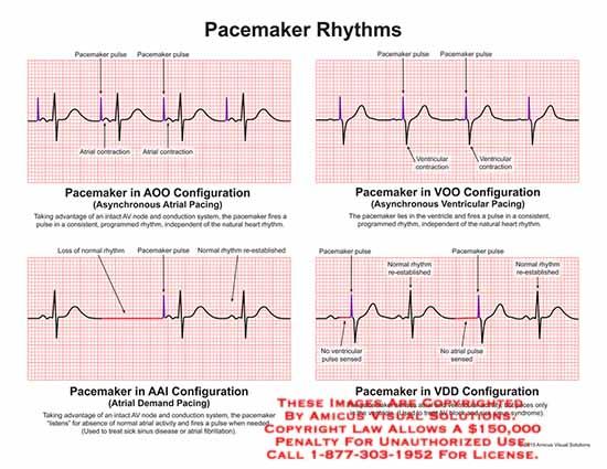 amicus,chart,pacemaker,rhythms,pulse,atrial,contraction,AOO,configuration,asynchronous,pacing,AV,node,conduction,ventricular,AII,atrial,demand,normal,sinus,disease,atrial,fibrilation,VDD,sick,AV,block,