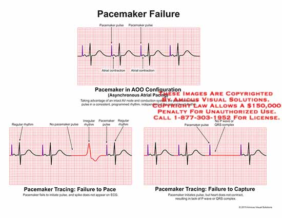 amicus,chart,pacemaker,failure,pulse,atrial,contraction,AOO,configuration,asynchonous,pacing,AV,node,conduction,system,rhythm,heart,irregular,regular,spike,ECG,P,wave,QRS,