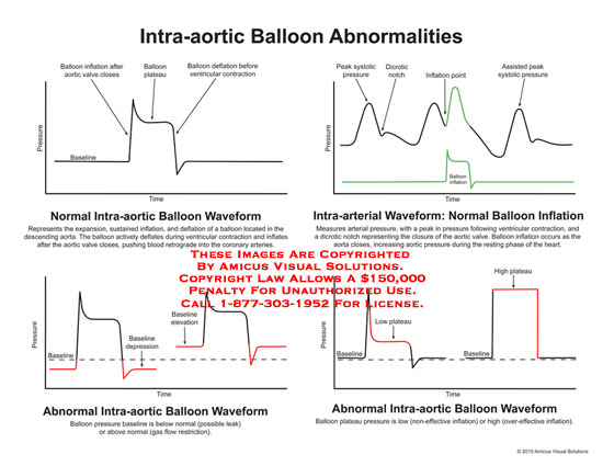 amicus,chart,intra-aortic,balloon,abnormalities,aortic,valce,plateau,baseline,time,pressure,ventricular,contraction,retrograde,coronary,arteries,systolic,dicrotic,inflation,baseline,