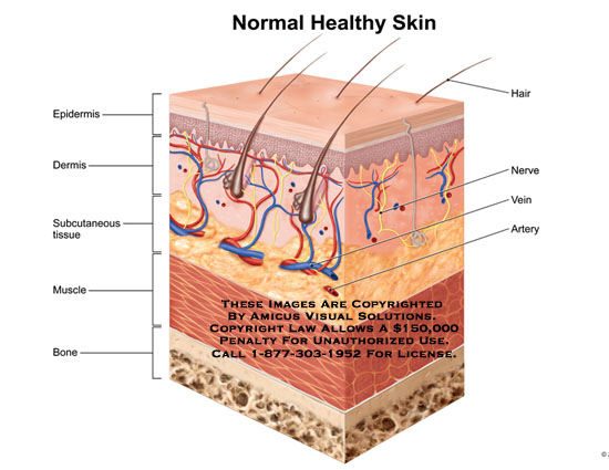 amicus,anatomy,normal,healthy,skin,epidermis,dermis,subcutaneous,tissue,muscle,bone,hair,nerve,vein,artery,