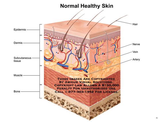 amicus,anatomy,normal,healthy,skin,epidermis,dermis,subcutaneous,tissue,muscle,bone,hair,nerve,vein,artery,