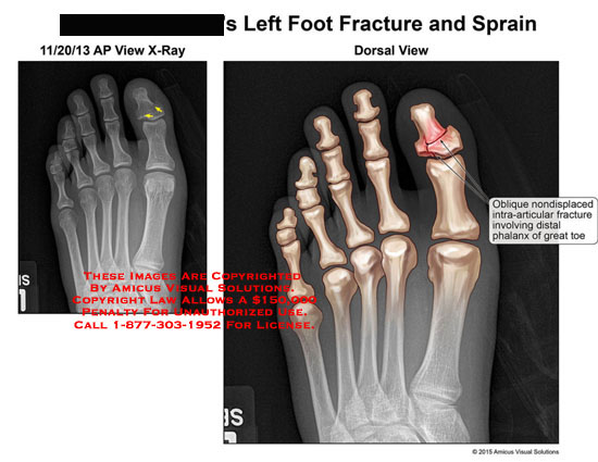 amicus,injury,fracture,foot,sprain,x-ray,oblique,nondisplaced,intra-articular,distal,phalanx,great,toe,