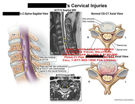 amicus,injury,cervical,C-spine,C4,C5,C6,C7,disc,bulging,C5-C6,protrusions,C6-C7,neural,foramina,mri,annulus,nucleus,thecal,sac,spinal,cord,nerve,root,