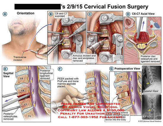 amicus,surgery,cervical,fusion,C6,C7,annulus,incised,disc,endplates,posterior,disc,osteophyte,ligament,longitudinal,PEEK,cage,ProFuse,bone,marrow,aspirate,titanium,screws,
