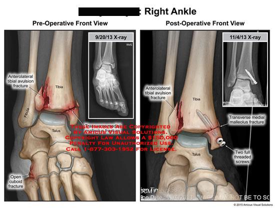 amicus,injury,ankle,anterolateral,tibial,avulsion,fracture,tibia,fibula,talus,cuboid,medial,malleolus,threaded,screws,