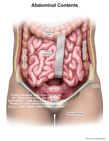 amicus,anatomy,abdominal,contents,ascending,colon,transverse,descending,small,intestines,uterus,bladder,pelvis,pubic,symphysis