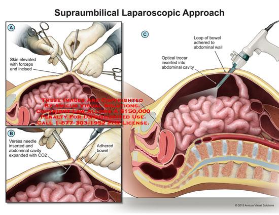amicus,surgery,supraumbilical,laparoscopic,approach,forceps,veress,needle,abdominal,cavity,adhered,bowel,optical,trocar,uterus,