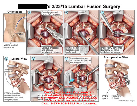 amicus,surgery,lumbar,fusion,L5-S1,spinous,process,bilateral,hemilamnia,facetectomies,discectomy,nerve,root,decompression,PEEK,autograft,demineralized,bone,matrix,cortical,screws,L5,alar,sacrum,decorticated,autograft,rods,nuts,hardware,