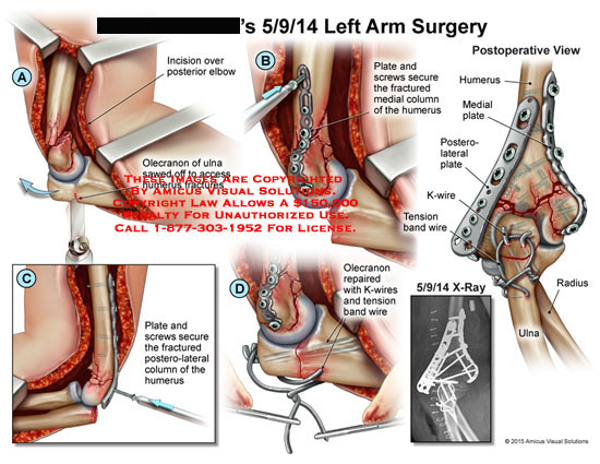 amicus,surgery,arm,elbow,olecranon,ulna,humerus,fractures,plate,screw,medial,column,plate,posterolateral,k-wire,tension,band,radius,