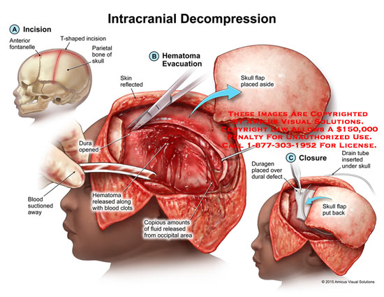 amicus,surgery,intracranial,decompression,anterior,fontanelle,t-shaped,incision,parietal,bone,skin,blood,dura,skull,flap,hematoma,clots,occipital,area,duragen,dural,defect,closure,evacuation,drain,tube,