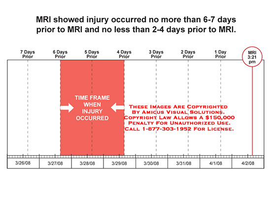 amicus,calendar,time,frame,injury,occurred,days,rior,mri