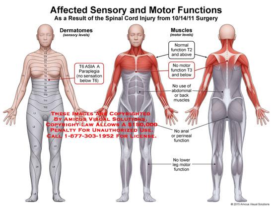 amicus,injury,dermatomes,muscles,t6,paraplegia,normal,function,motor,abdominal,back,anal,perineal,lower,leg,motor,function