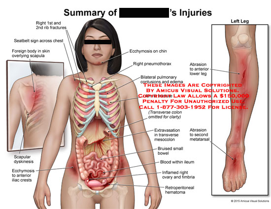 amicus,injury,1st,2nd,rib,fracture,seatbelt,sign,chest,foreign,body,overleying,scapula,scapuar,dyskinesis,ecchymosis,anterior,iliac,crest,pneumothorax,bilateral,pulmonary,contusions,edema,4th,extravasation,transverse,mesocolon,bruised,small,bowel,blood,within,ileum,abrasion,anterior,lower,leg,second,metatarsal