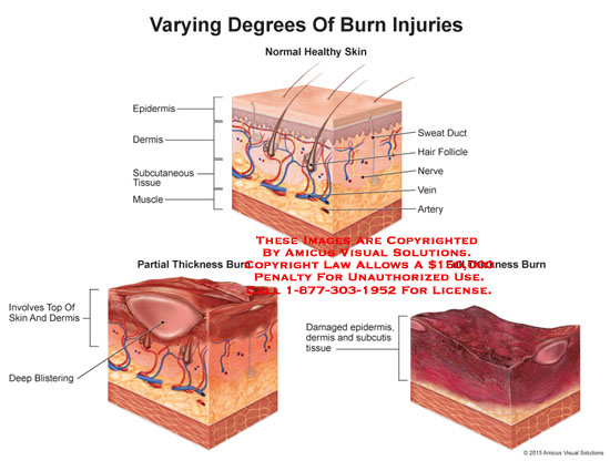 amicus,anatomy,normal,epidermis,dermis,subcutaneous,tissue,muscle,sweat,duct,hair,follicle,nerve,vein,artery,partial,thickness,burn,full,top,deep,blistering,famaged,tissue