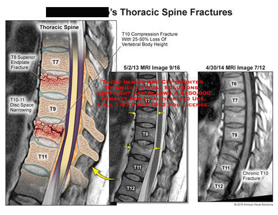 amicus,injury,thoracic,spine,t8,t10,t11,superior,endplate,fracture,disc,space,narrowing,compression,fracture,vertebral,body,weight,mri