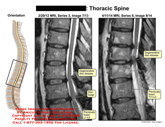 amicus,injury,mri,t8,t9,t10,t11,t12,l1,degenerative,disc,disease,bulge,previously,fused,