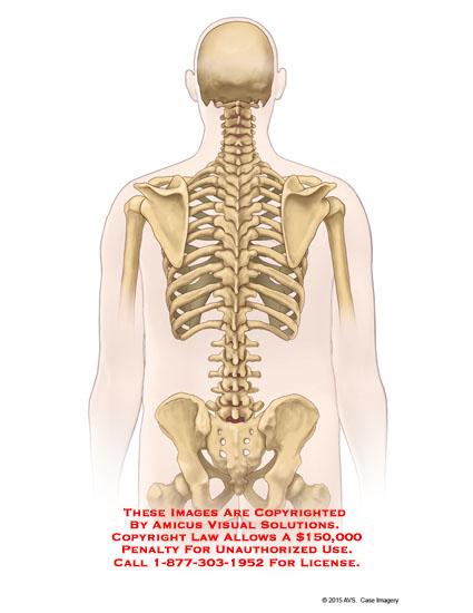 amicus,anatomy,posterior,spine,lumbar,skeleton