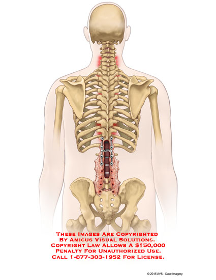 amicus,surgery,posterior,lumbar,spine,fusion,laminectomy