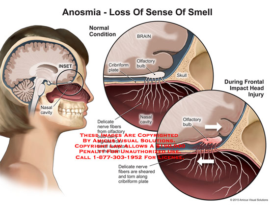 amicus,anatomy,normal,inset,nasal,cavity,brain,olfactory,bulb,cribriform,plate,delicate,fibers,signals,receptors,sheared,torn