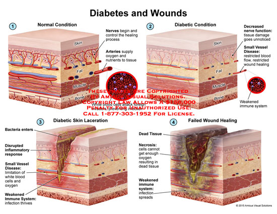 amicus,anatomy,normal,diabetic,skin,laceration,failed,wound,healing,skin,fat,muscle,bone,nerves,arteries,white,blood,cells,decreased,function,tissue,damaged,restricted,blood,weakened,immune,system,bacteria,disrupted,inflammatory,resonse,weakened,necrosis,oxygen,dead,infection,spreads