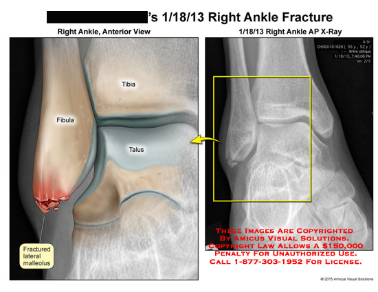 amicus,injury,fibula,tibia,talus,fractured,lateral,malleolus,ankle