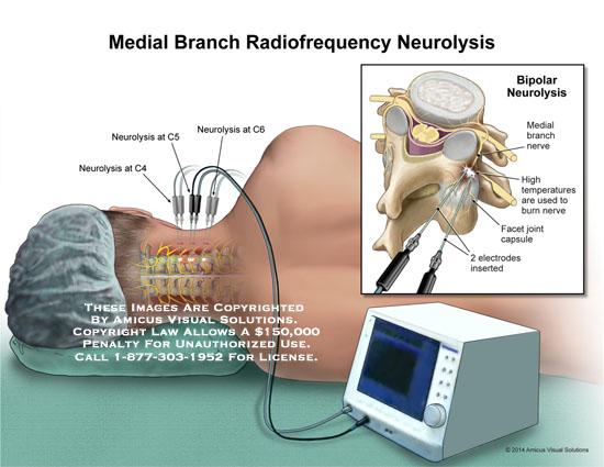 amicus,surgery,neurolysis,c4,c5,c6,bipolar,neurolysis,medial,branch,nerve,high,temperatures,burn,nerve,facet,joint,capsule,2,electrodes,