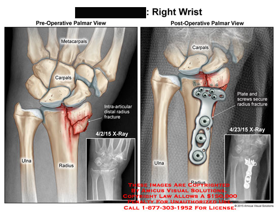 amicus,injury,right,wrist,metacarpals,carpals,ulna,radius,intraa-articular,distal,fracture,plate,screws,x-ray