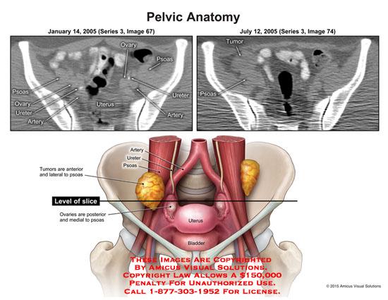 amicus,anatomy,pelvic,ovary,psoas,ureter,artery,tumor,level,slice,