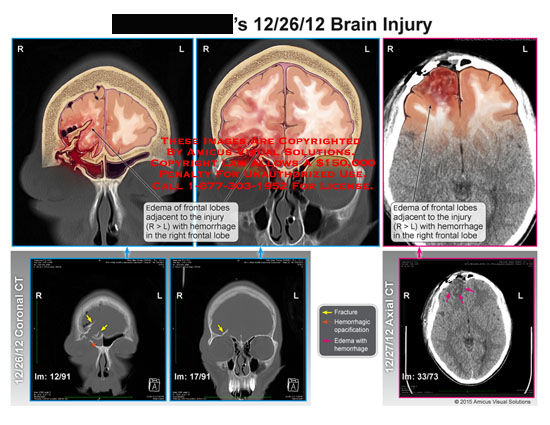 amicus,injury,brain,skull,facial,edema,frontal,lobes,hemorrhage,opacification,CT