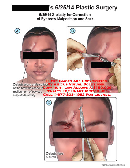 amicus,surgery,plastic,face,eyebrow,z-plasty,malposition,scar,correction,undersurface,brow,realignment,step,off,deformity,flaps,sutured