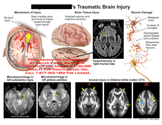 amicus,injury,traumatic,skull,brain,impacts,travels,tissue,impaired,memory,cognitive,functions,neurons,damaged,hyperintensity,right,frontal,lobe,neuron,damage,metabolic,crisis,microglia,toxic,proteins,detachment,microhemorrhage,substantia,nigra,globus,pallidus,axonal,injury,bilateral,white,matter