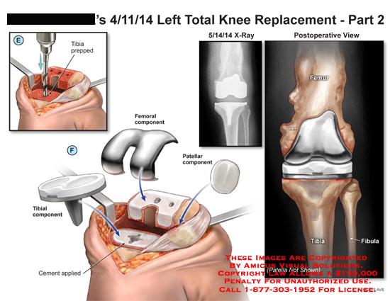 amicus,surgery,knee,total,replacement,lefttibia,femoral,component,tibial,patellar,femur,tibia,fibula,postoperative