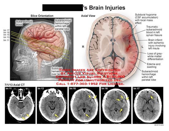 amicus,injury,brain,subarachnoid,hemorrhage,parietal,lobe,subdural,hematoma,tentorium,falx,hygroma,CSF,accumulation,sylvan,tissue,infarct,insula,grey,white,matter,edema,swelling,