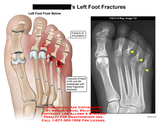 amicus,injury,foot,left,fracture,3rd,phalanx,4th,5th,metatarsals,fragments,displaced,