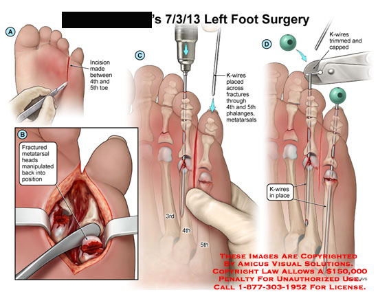 amicus,surgery,foot,incision,toe,fracture,metatarsal,heads,manipulated,k-wires,phalanges,metatarsals,trimmed,capped