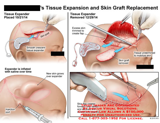 amicus,surgery,tissue,expansion,skin,graft,replacement,crescent,flap,undermined,saline,inflated,expander,rotated,suture,staples