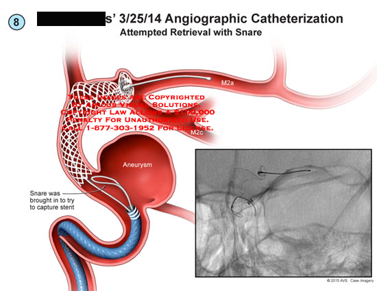 amicus,surgery,angiographic,catheterization,attempted,retrieval,snare,capture,stent,aneurysm