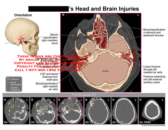 amicus,injury,head,brain,csf,blood,opacification,maxillary,sinus,depressed,fracture,draining,ears,mastoid,air,cells,sphenoid,sinus,linear,auditory,canal,axial,ct