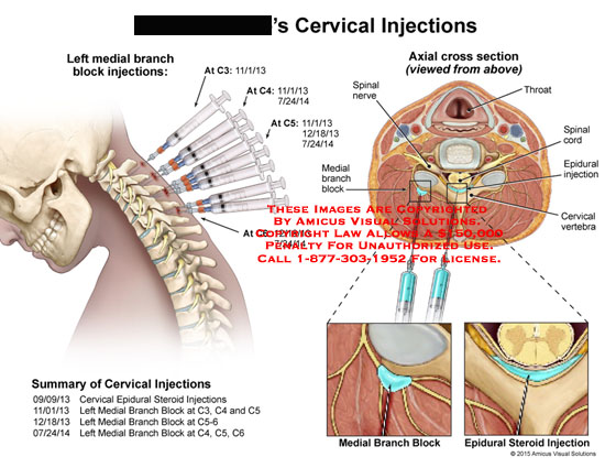 amicus,surgery,cervical,injection,medial,branch,block,injection,axial,cross,section,spinal,nerve,throat,spinal,cord,epidural,vertebra