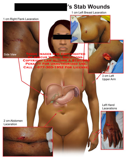 amicus,injury,stab,wounds,laceration,flank,breast,arm,hand,abdomen