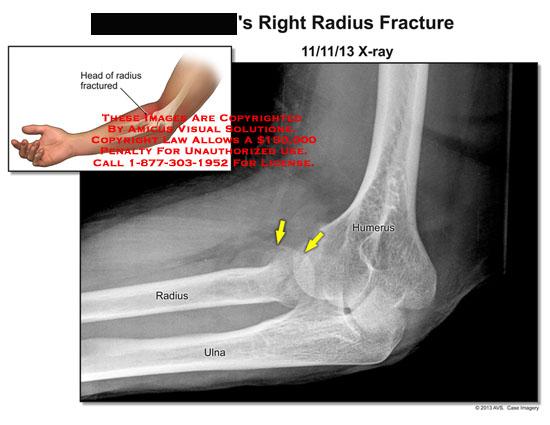 amicus,injury,radiology,x-ray,radius,fracture,humerus,ulna