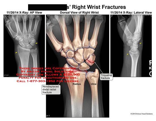 amicus,injury,wrist,fracture,triquetral,nondisplaced,radial,radius,ulna,triquetrum