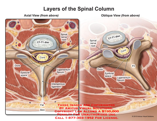 amicus,anatomy,spine,spinal,column,cord,axial,oblique,view,above,c7,t1,c7-t1,disc,dura,epidural,space,ligamentum,flavum,interspinous,ligament,nerve,root