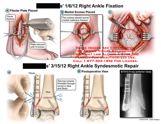 amicus,surgery,fixation,syndesmotic,ankle,bone,fibula,fracture,fibular,plate,screws,secured,medial,malleolus,deltoid,ligament,repaired,sutures,ZipLoop,repair,threaded,tibia,tunnel,postoperative,view,x-ray,anterior